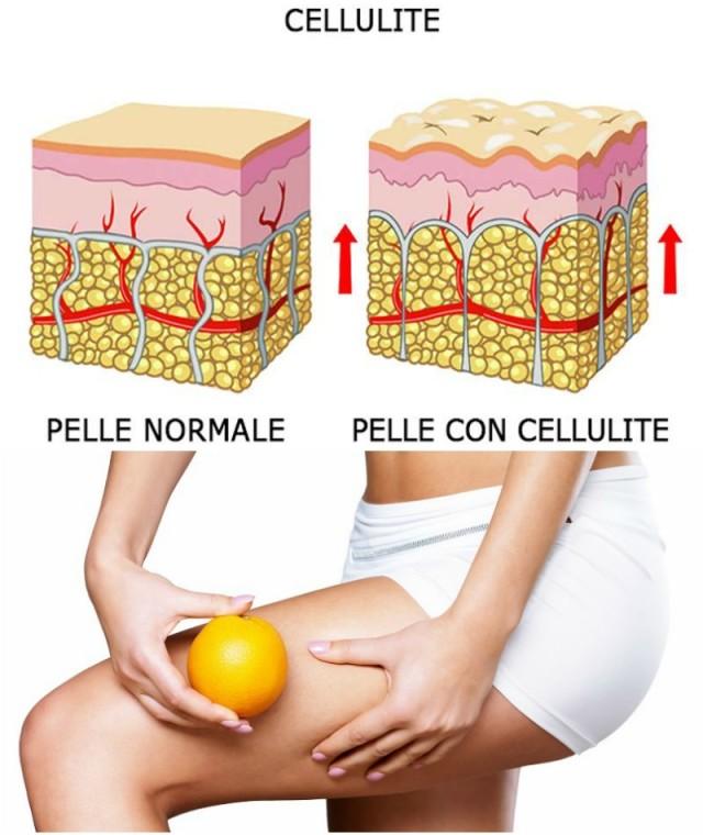 cellulite-ritenzione-idrica-caratteristiche-rimedi