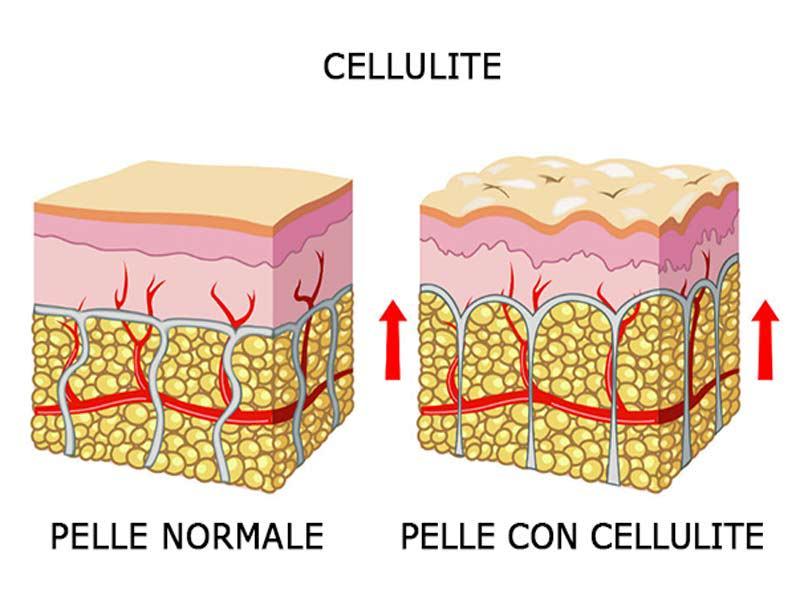 cellulite-ritenzione-idrica-caratteristiche-rimedi-7