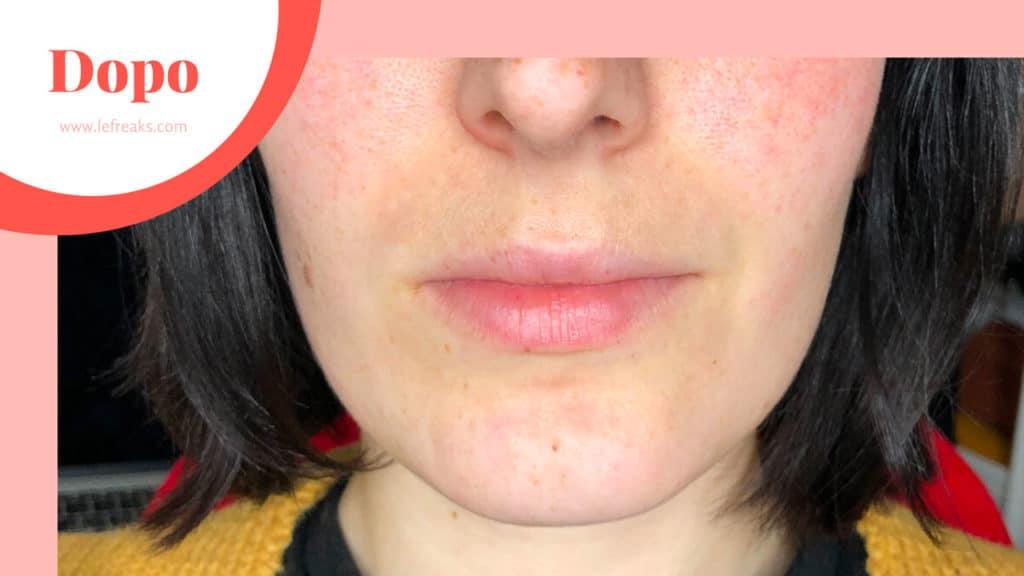 trattamento tribella venus versa per eliminare le macchie sul viso