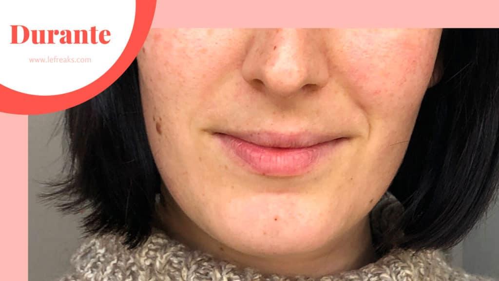 eliminare macchie viso con luce pulsata